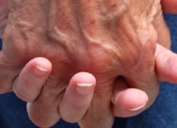 Una guía aborda la atención integral a enfermos de Parkinson